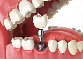 Zahnimplantat - Wählen Sie Kompetenz, Erfahrung und Qualität!