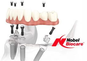 Nobel Biocare All-on-4® / All-on-6®