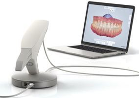 3shape TRIOS®, die digitale Lösung für Abdrucknahme