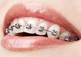 Zahnregulierung, Zahnspange und Kieferorthopädie in Ungarn