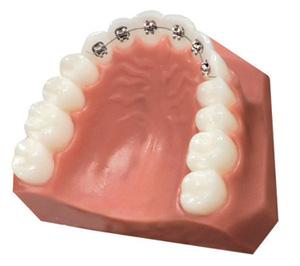 Diamant Dent Linguál fogszabályozás